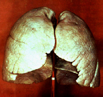 normal_lung