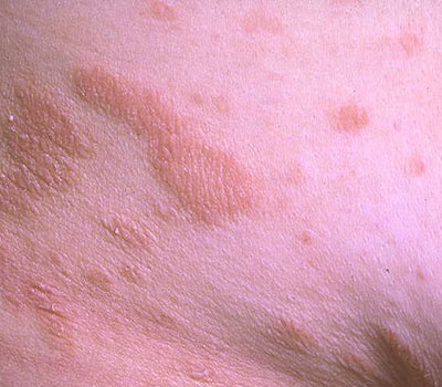 Pityriasis Rubra Pilaris. battling with pityriasis