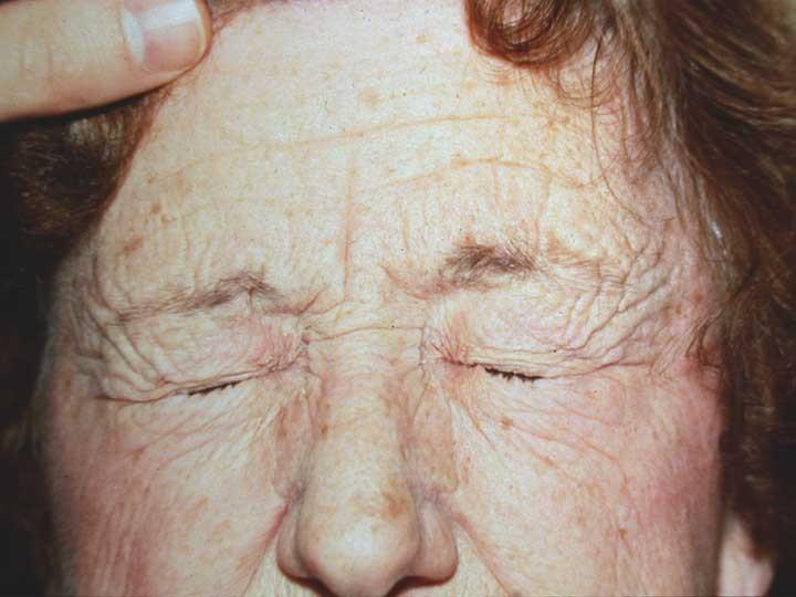 ������ ����� � ������ � ������ �����ʘ�,����� ������ ����� ������� blepharospasm.jpg