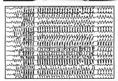 ��� �� ����� ,����� ���� �� ���Seizure,���� ��� �� ����� ,������� �� ����� ������ epilepsy6.jpg